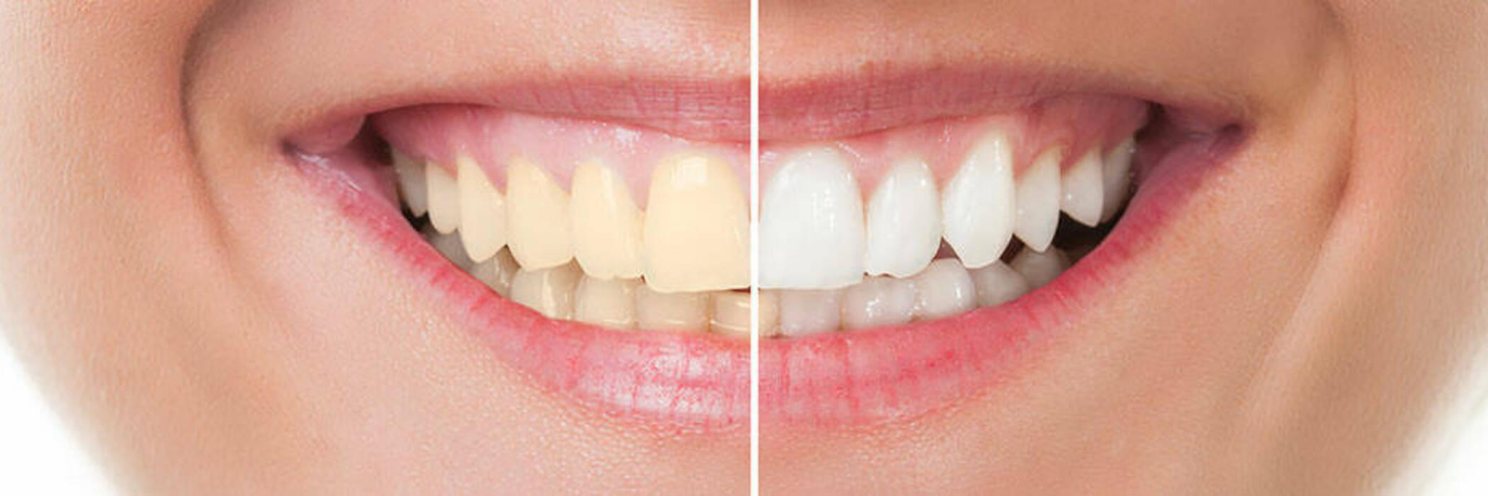 وصفات طبيعية لتبييض الاسنان في ثلاث دقائق ومن أول استعمال جربوا الآن 1
