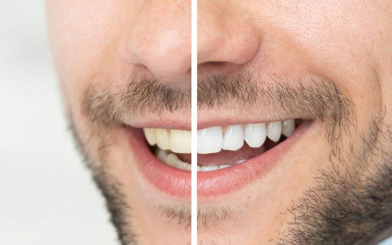 وصفات طبيعية لتبييض الاسنان في ثلاث دقائق ومن أول استعمال جربوا الآن